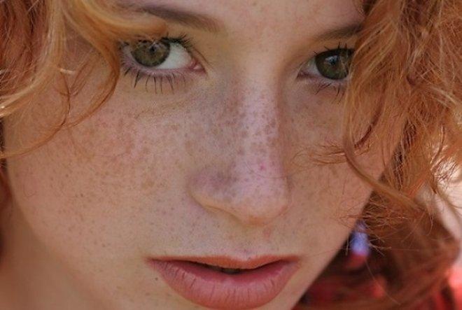 Веснушки у девушки с рыжими волосами