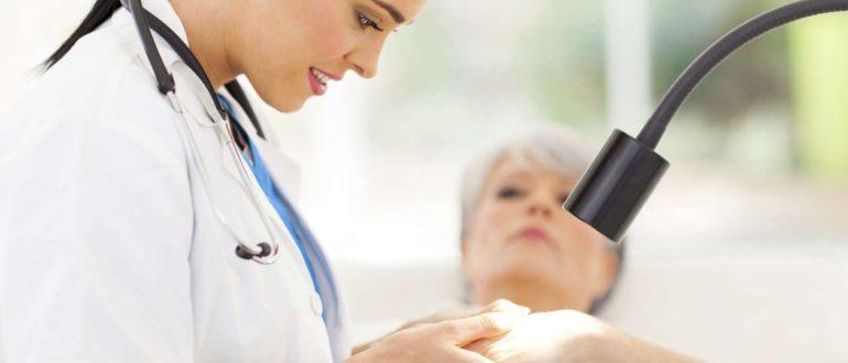 Папиллома после прижигания жидким азотом — Центр женского здоровья