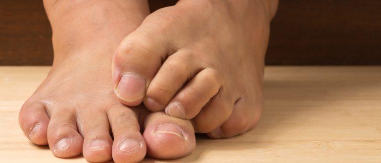Вирусная бородавка на пальце ноги