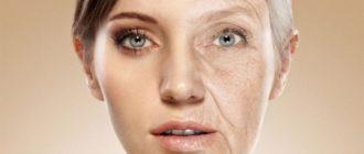 Постаревшая кожа