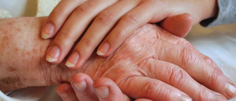 Старческие бородавки: лечение возрастных кератом