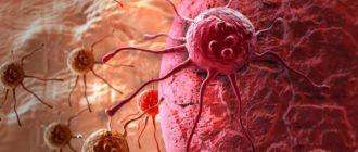 ВПЧ с онкогенным риском