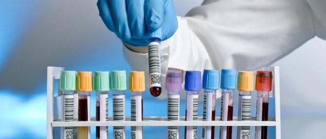 Какие методы диагностики используются для выявления псориаза?