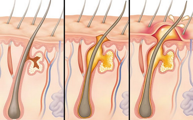 Фурункул на интимных местах у женщин симптомы 18