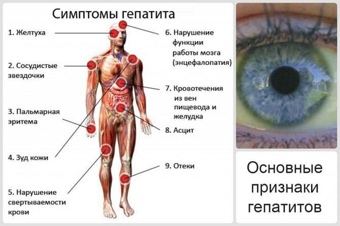 Симптомы гепатита C