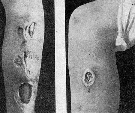 Клинические проявления третичного сифилиса, диагностика и лечение патологии.