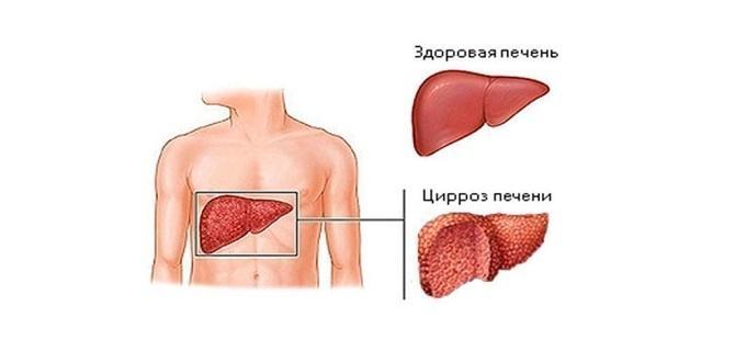 Гепатит приводит к циррозу