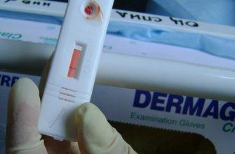 Экспресс-тест на ВИЧ