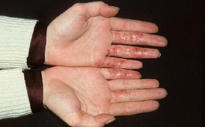 Микробная экзема на пальцах рук
