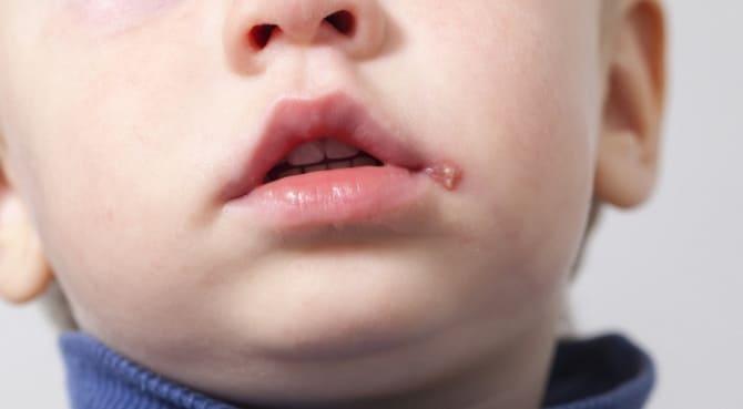 Герпес на губах у ребенка