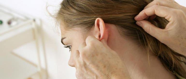 Черные точки в ушах: причины появления и как избавиться