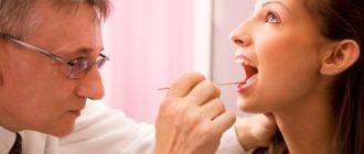Врач заглядывает в рот пациенту