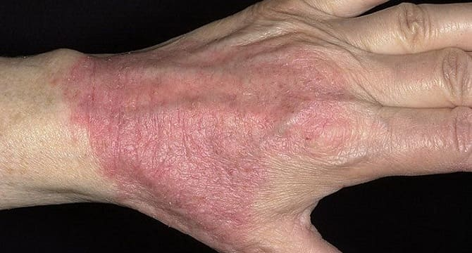 Атопический дерматит на руке