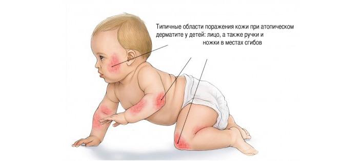 Местоположение атопического дерматита у детей