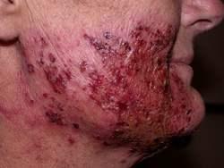 Лучевой дерматит