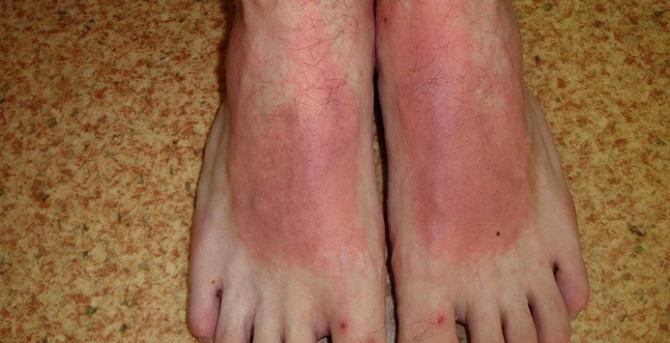 Атопическический дерматит на ногах