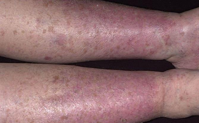 Венозный дерматит