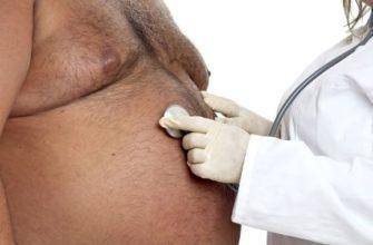 Тучный мужчина у врача