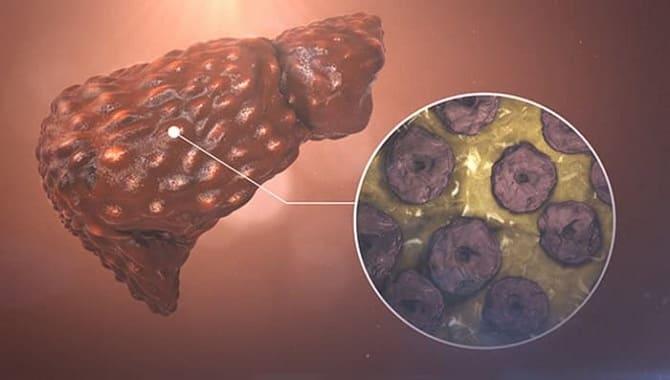 Разрушение гепатоцитов