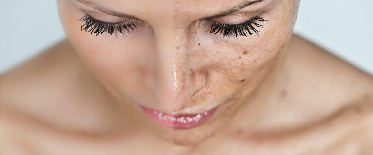 Маски для улучшения цвета лица в домашних условиях: рецепты