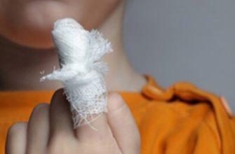 Забинтован палец на руке