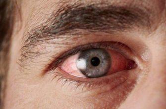 У мужчины красные глаза