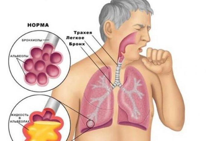 Мокрота в лёгких