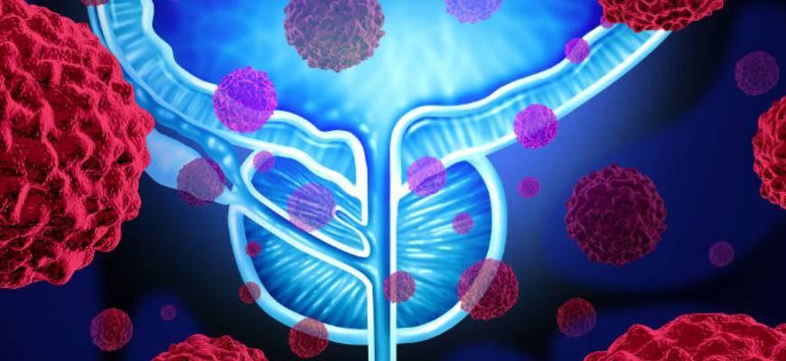 Народные средства от аденомы предстательной железы - мужское здоровье