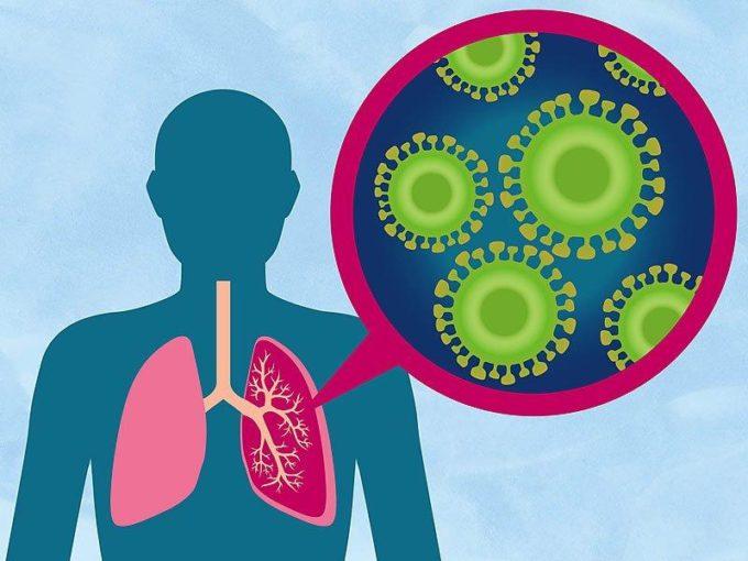Бактерии пневмонии