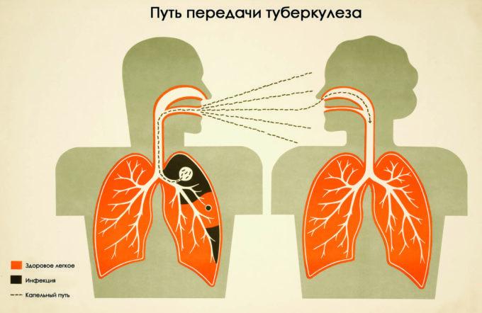 Путь передачи туберкулеза
