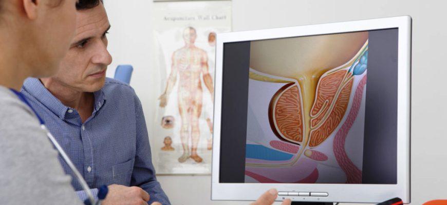 Профилактика простатита у мужчин: как предотвратить заболевание